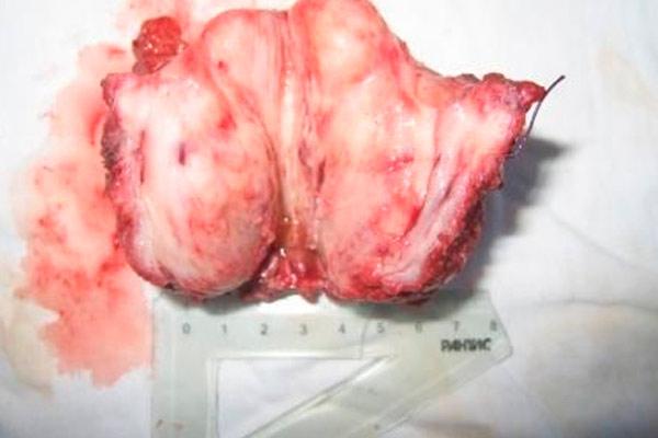 муцинозная карцинома простаты в разрезе