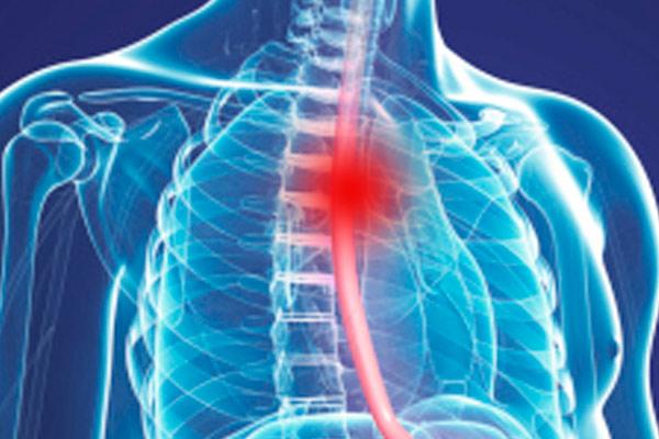 низкодифференцированный плоскоклеточный рак пищевода