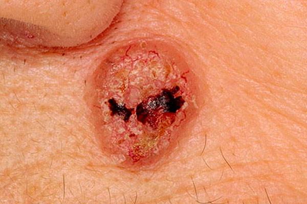 рак крови и кожи