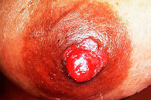 как выглядит рак груди начальной стадии