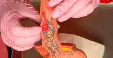 как проявляется плоскоклеточный рак пищевода на ранних стадиях