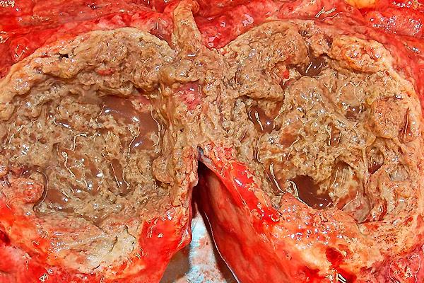 диагностика опухоли печени