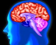 липома головного мозга больших размеров