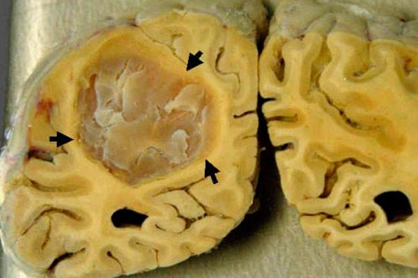 первые признаки опухоли головного мозга у женщин всех возрастов