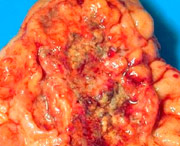 симптомы рака желудка