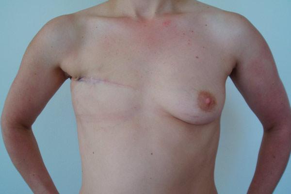молочная железа после операции
