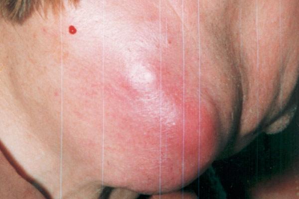первые признаки перед раком кожи на животе у женщин