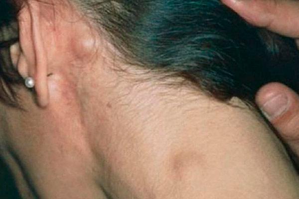 лимфома бывает двух видов
