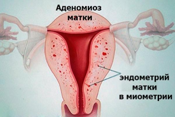 часто встречается диффузно узловая форма аденомиоза