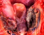 рак горла симптомы признаки