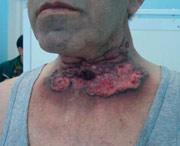 как выглядит опухоль гортани