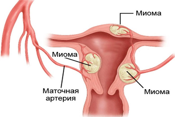 причины возникновения миомы шейки матки у нерожавших