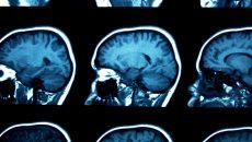 виды различных злокачественных опухолей головного мозга