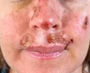 как выглядит рак кожи на лице