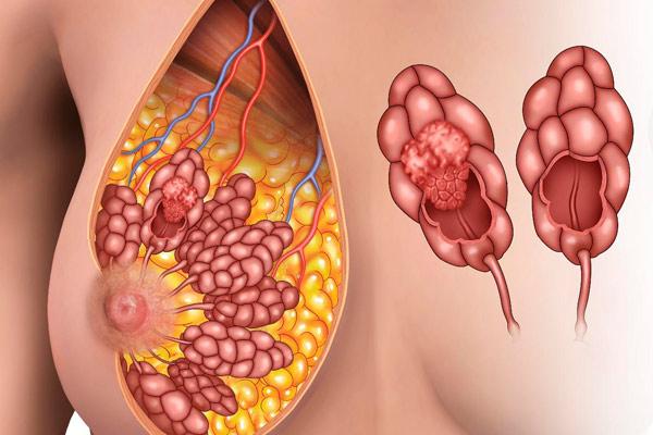 как выглядит грудь больная раком