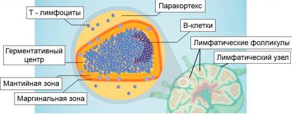 где находится лимфома из клеток маргинальной зоны