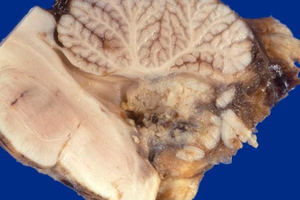 внутренняя структура опухоли