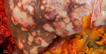 гепатоцеллюлярный рак печени и его скрытые проявления