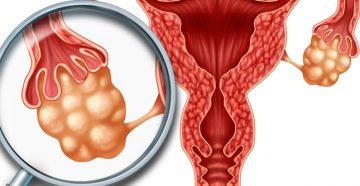 признаки рака яичников схожи с более легкими заболеваниями