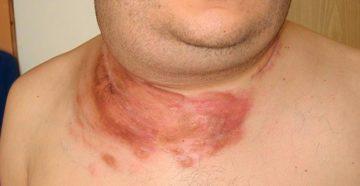 диффузная лимфома мелкоклеточного строения