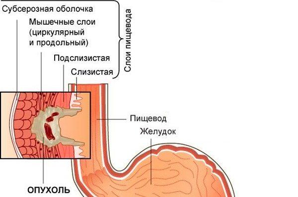 клиническая картина на 2В стадии