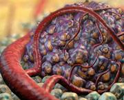самые страшные виды рака
