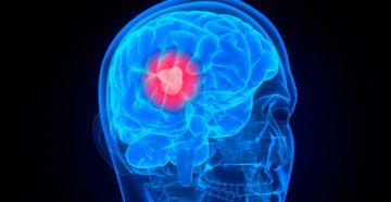 неоперабельная опухоль мозга на последней стадии
