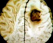 какие опухоли бывают в головном мозге