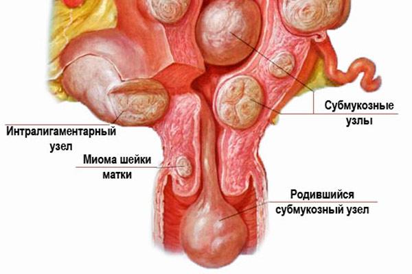 родившийся субмукозный узел