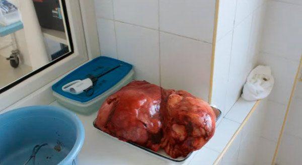 жировик весом несколько килограмм
