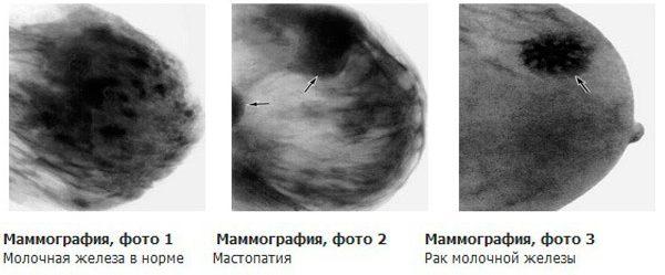 Маммография должна проводиться раз в год