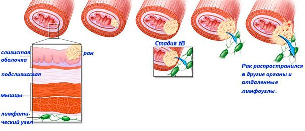 стадии и подстадии болезни
