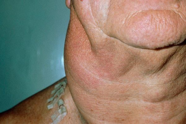 мелкоклеточная лимфоцитарная опухоль на шее