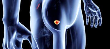 способы увеличить продолжительность жизни при раке простаты 3 степени