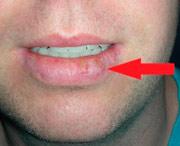 рак корня языка и губы