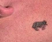 признаки появления меланомы
