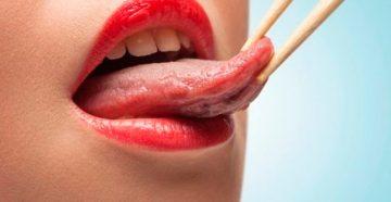 как вылечить плоскоклеточный рак языка