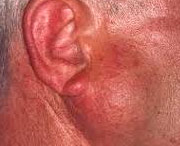новообразованию рядом с ухом
