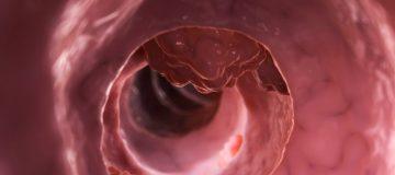 каким образом лечится карцинома прямой кишки