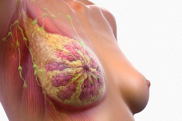 что такое трижды негативный рак молочной железы
