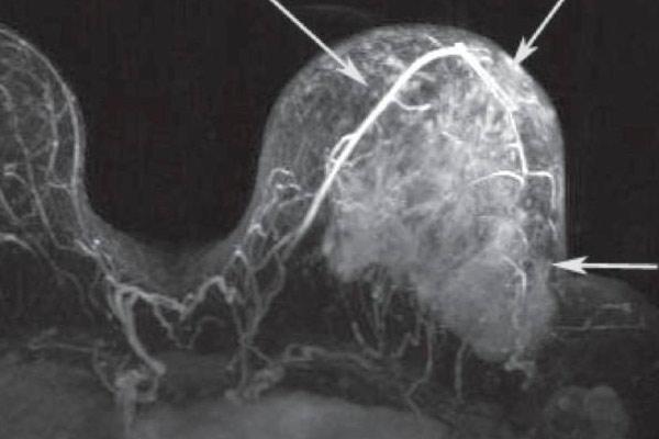 опухоль груди на снимке