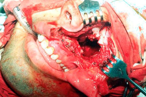 носоглотка во время операции