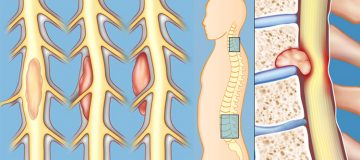 ранние и поздние симптомы рака позвоночника