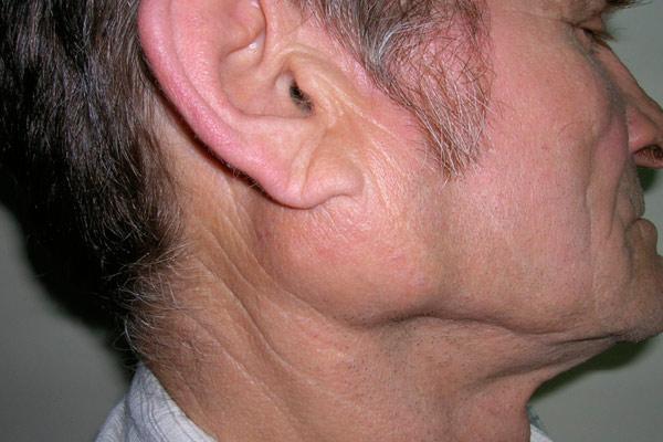 новообразование под ухом