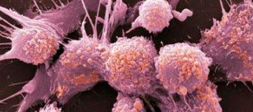 как выглядят метастазы рака легких