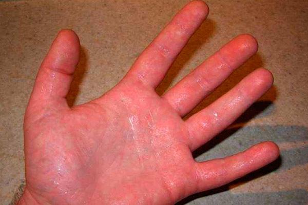 появляется липкость рук