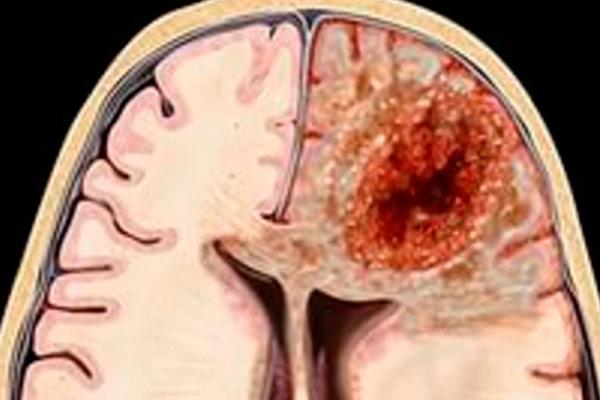 опухоль метастазировала в череп