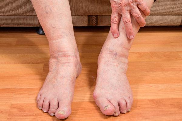 фото отекших ног