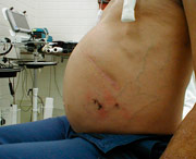 причины асцита при циррозе