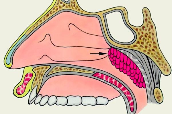 фото рака носоглотки